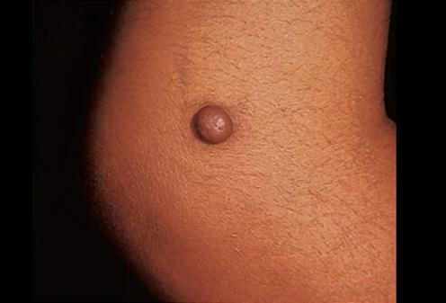 Removal of dermatofibromas